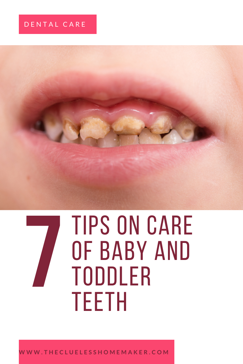 baby toddler tooth decay